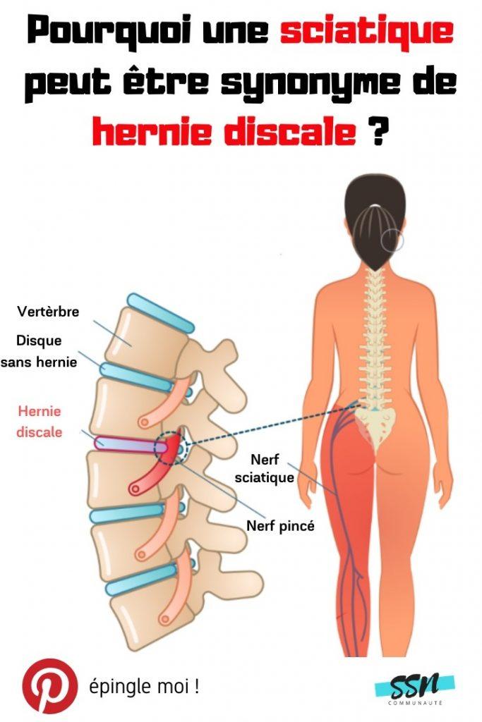 Pourquoi une sciatique peut être synonyme de hernie discale